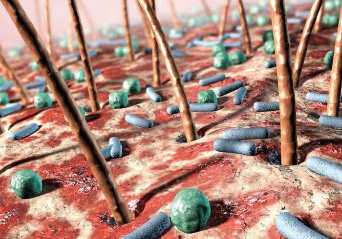 бактерии как причина изменения запаха пота